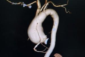 解離性大動脈瘤②